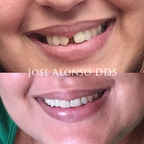 Smile Makeover doctor alonso