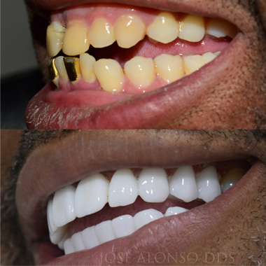 Before and After Porcelain Crowns Dominican Republic